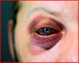 assault-black-eye.jpg