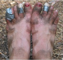 Manky Mucky Infected Feet...!!!
